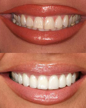 northstar dental lincoln ne dental veneers