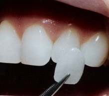 Dental Lumineers example