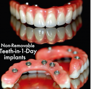 Dental Implants teeth in one day advertisement