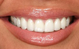teeth reshaping example