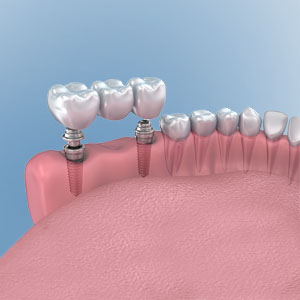 Implant Dentistry - Multiple teeth with Implants illustration
