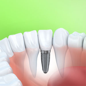Implant Dentistry - Tooth Implant illustration