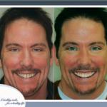 dentist-lincoln-ne-dental-bonding