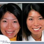dentist-lincoln-ne-northstar-dental-gallery-5