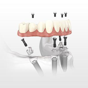 Implant Dentistry - Retaining permanent Implant illustration
