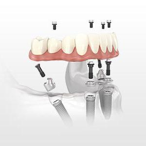 lincoln ne northstar dental 4 Implant Dentistry