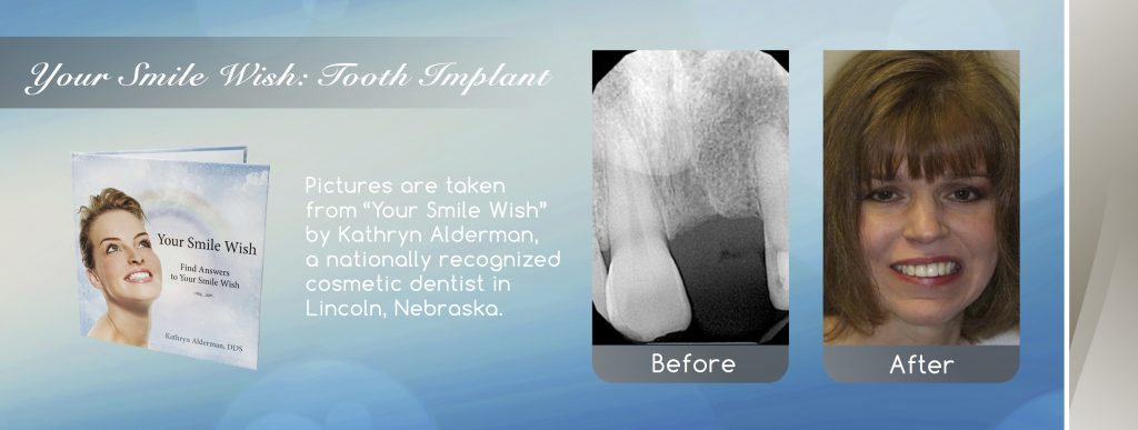 dental implant before and after banner