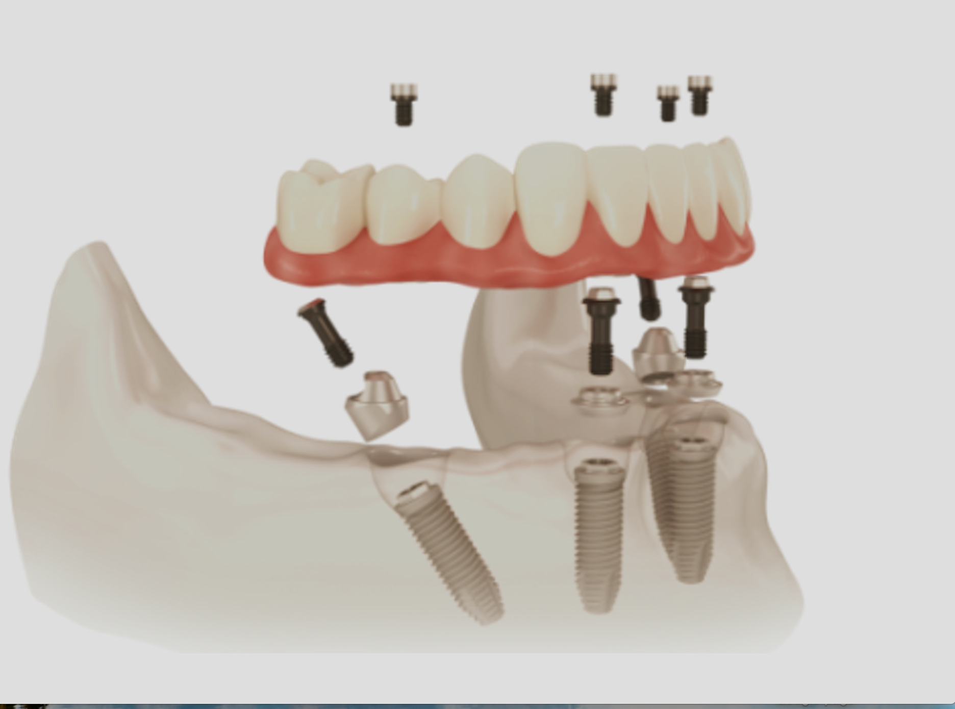 Dental Implants components