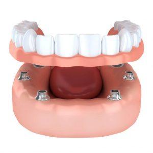 multiple implants nebraska family dentistry for missing teeth