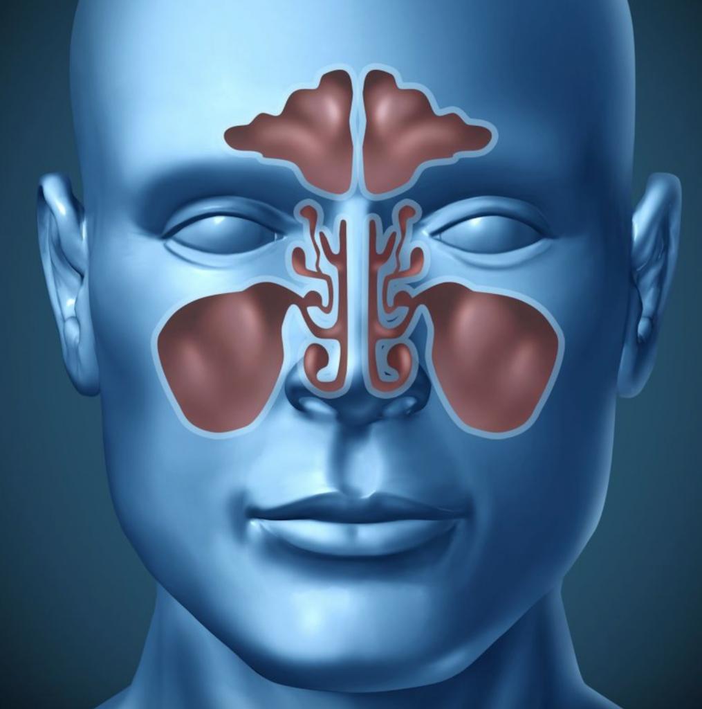 Sinusitis and Toothache illustration