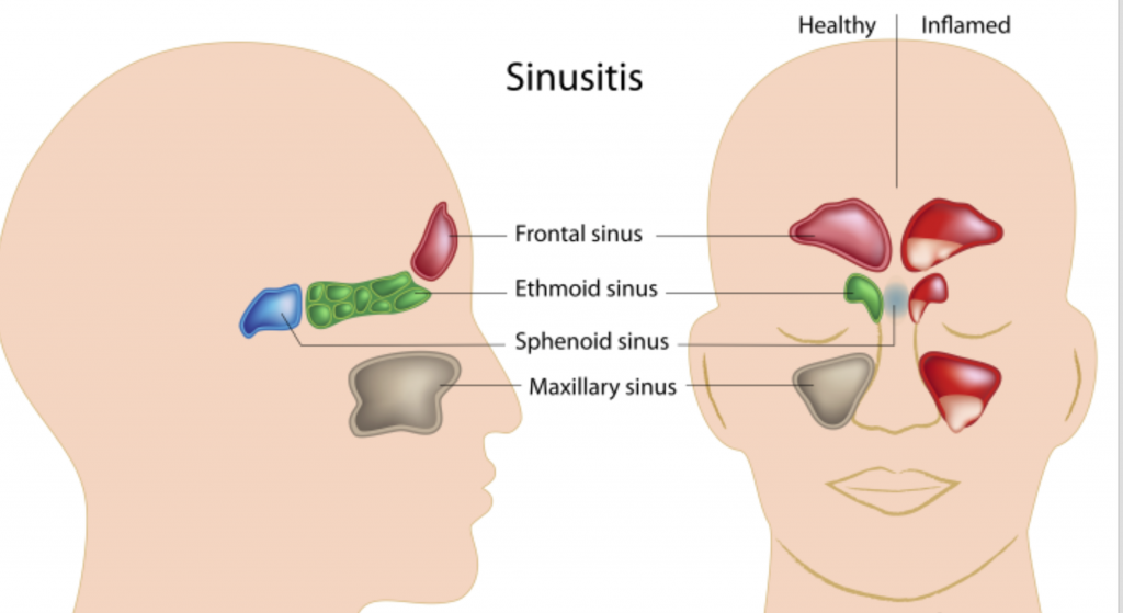 Sinusitis and Toothache diagram