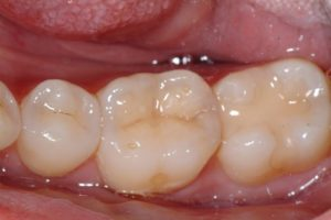 risks of amalgam fillings , metal free fillings