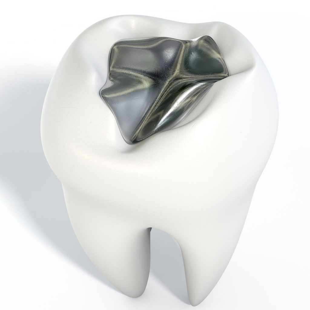 root canal success concerns for cracked fillings