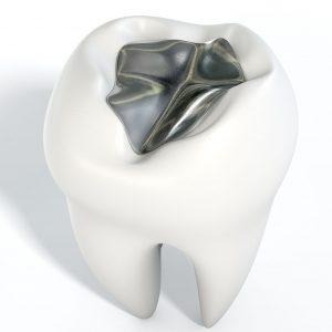 silver fillings dental lincoln ne risks of amalgam