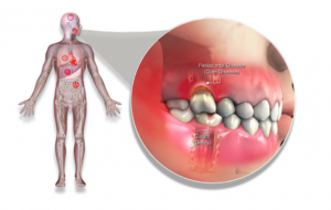 periodontal disease and overall health Lincoln Family Dentistry