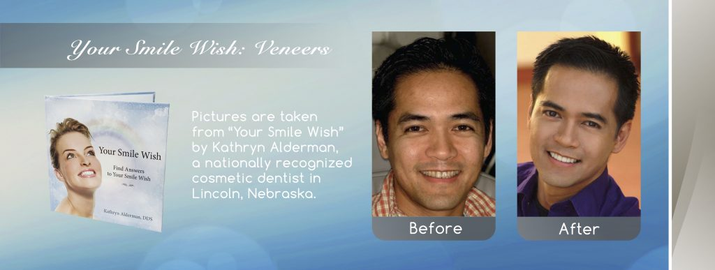Dental Veneers before and after banner