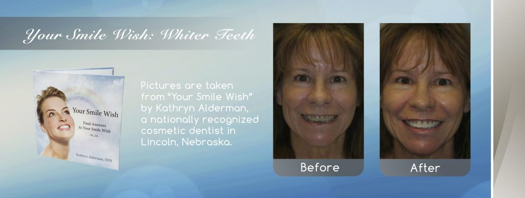 professional teeth Whitening before and after banner