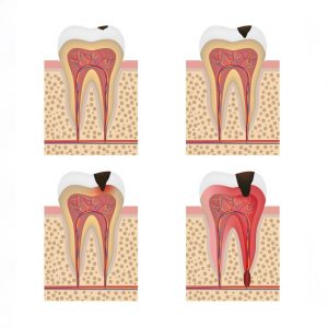 root canal progression northstar dental