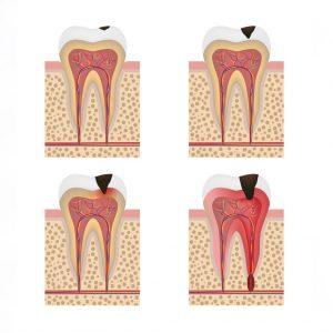 root canal progression northstar dental