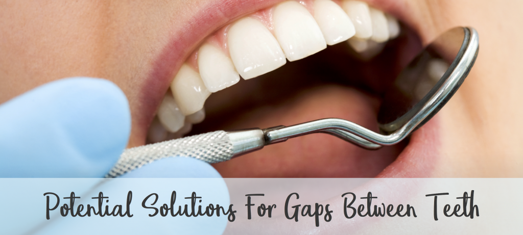 Banner for potential solutions for gaps between teeth