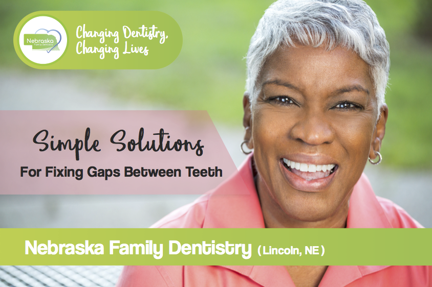 Banner for Simple Solutions for fixing gaps between teeth in Lincoln, NE