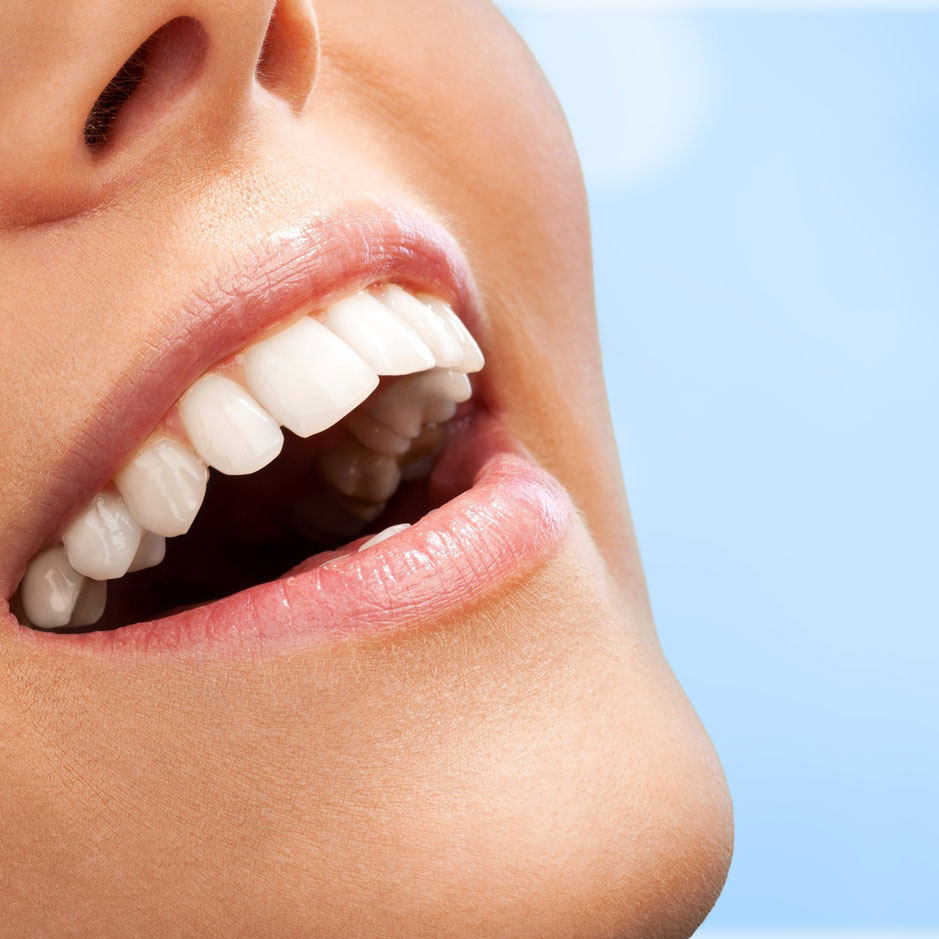 Teeth Whitening Lincoln Ne Northstar Dental