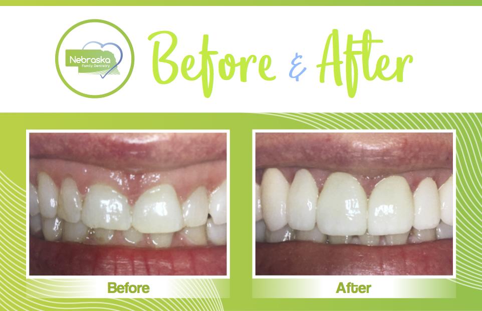 Nfd Before After Teeth Reshaping 2 Northstar Dental