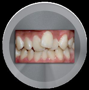 I don't like the shape of my teeth