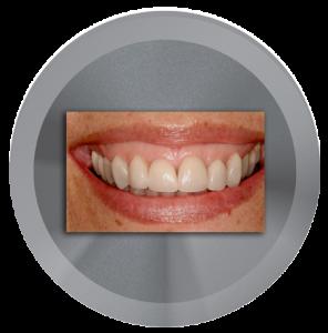 I have a Gummy Smile