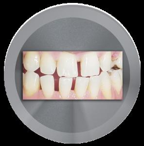 I have gaps between my teeth