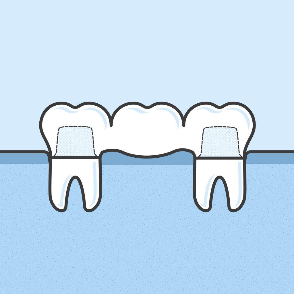 Root Canal in dental bridge