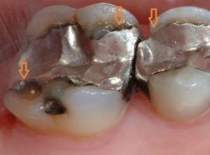 Image of old and broken amalgam fillings that can be safely removed by biological dentist, Dr. Kathryn Alderman.