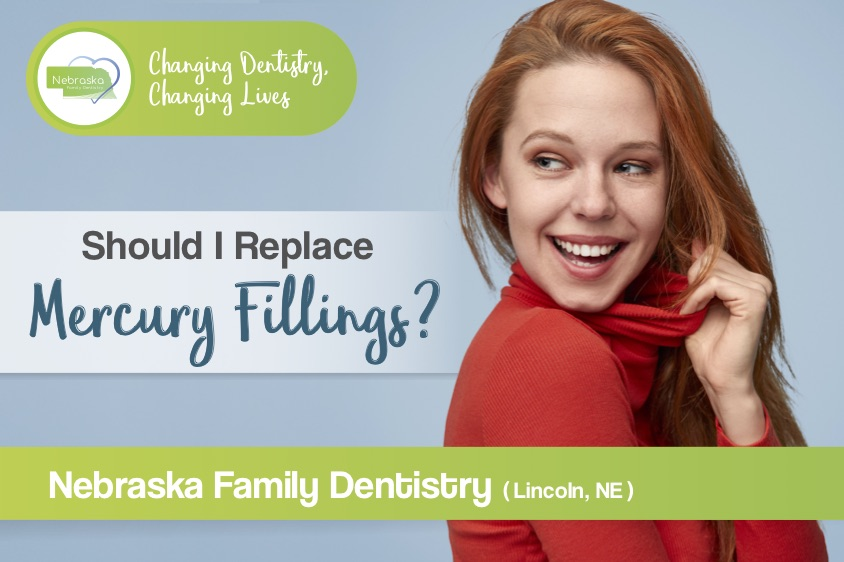 Should I replace mercury fillings? Northstar Dental Banner