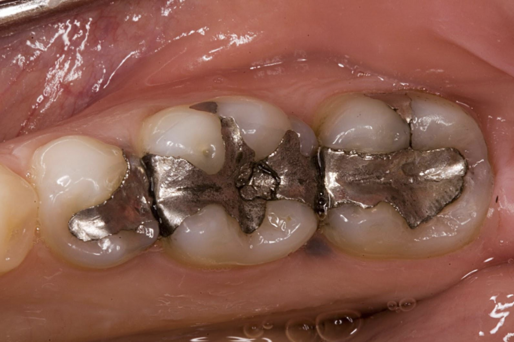 An image of a silver filling from Northstar Dental in Lincoln, NE. This image was before seeing a biological dentist in Lincoln, NE.