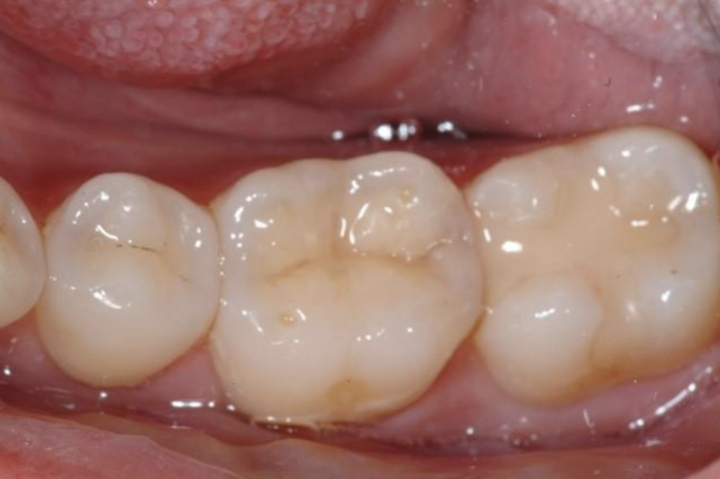 After image of a new white tooth-colored filling that was done by a biologial dentist in Lincoln, NE, Dr. Kathryn Alderman. This tooth-colored filling is one of the many mercury-free dental fillings done at Northstar Dental.