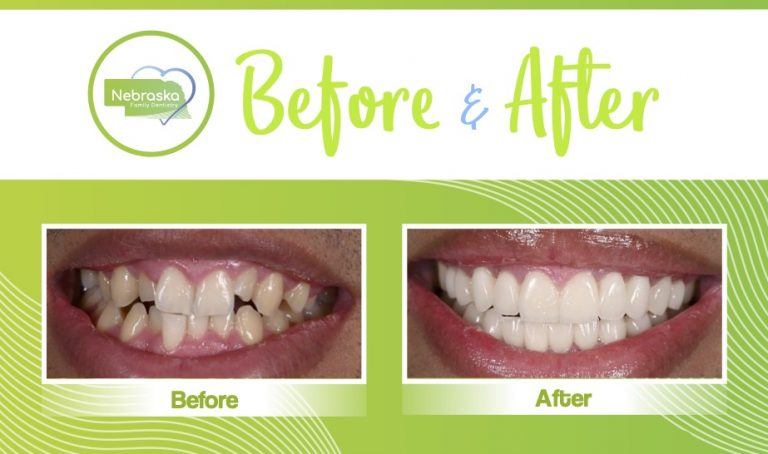 before and after veneers 2